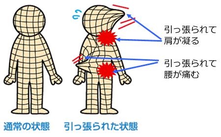 「腰 筋膜」の画像検索結果